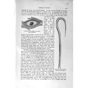 1896 TRICHINOSIS WORM GORDIUS LARVAE:  Home & Kitchen